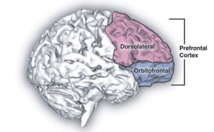 Sagittal human brain with cortical regions del...