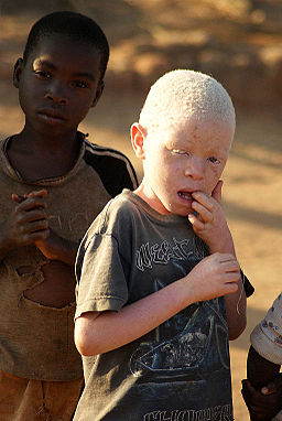 Albino boy by JJ Hoefnagel