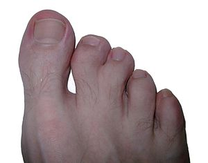 Syndactily feet