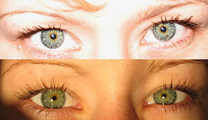 This is an example of Blue and Green eyes. The...