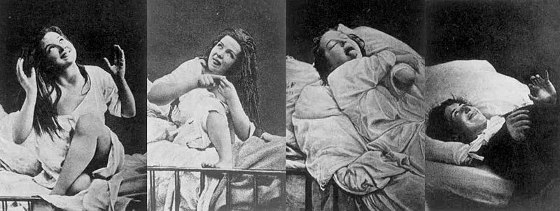 Women under Hysteria, by D.M. Bourneville and P. Régnard; from Wikipedia