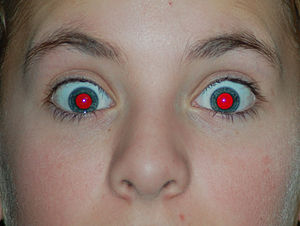 English: Glaring Red Eye
