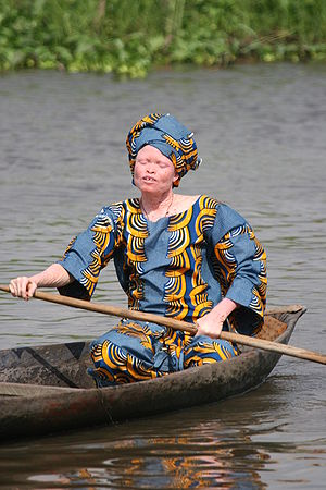 An albinistic woman in a canoe, Benin, Africa.