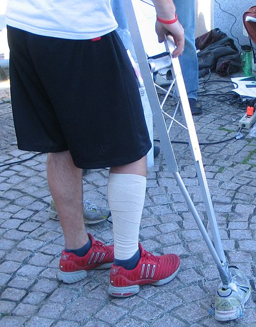 https://i1.wp.com/upload.wikimedia.org/wikipedia/commons/thumb/b/b5/KKC_2007_Crutches.jpg/500px-KKC_2007_Crutches.jpg