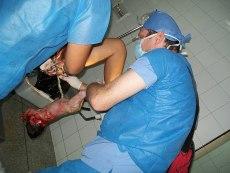 Childbirth labor