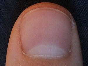 Nail (thumb)