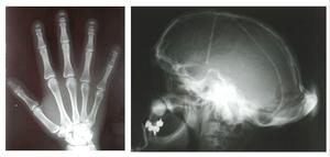 English: Hajdu-Cheney Syndrome : acro-osteolys...