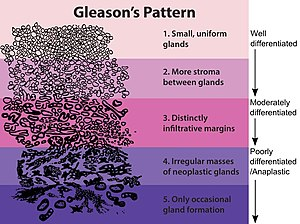 Gleason grade Lower grades are associated with...