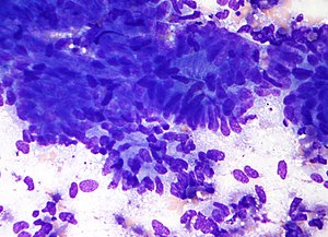 Micrograph of colonic adenocarcinoma. Lung FNA...