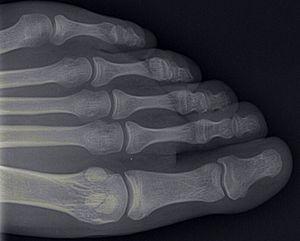 English: xray of toe bones Deutsch: Röntgenbil...