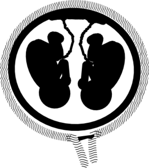Monoamniotic-Monochorionic twins
