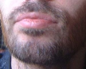 Swedish beard