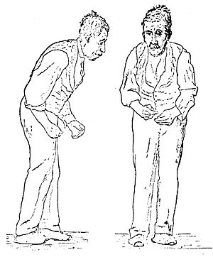 Illustration of Parkinson's disease
