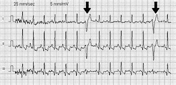 VPC, Ventricular Premature Complex, Heart, ECG...