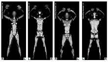 Bildergebnis für Body-Scanner