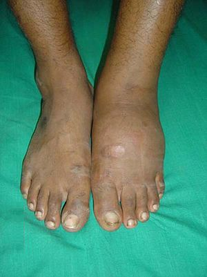 Diffuse swelling is noted to the left foot in ...
