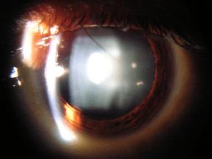 Slit lamp view of Cataract in Human Eye