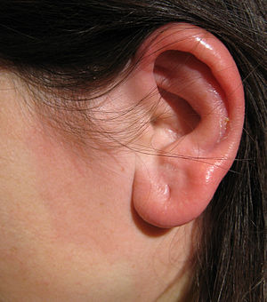erysipelas of the left ear