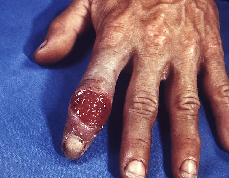 Archivo:Extragenital syphilitic chancre of the left index finger PHIL 4147 lores.jpg