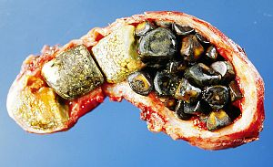 English: Opened gall bladder containing numero...