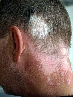 wel e to the world of prince wale yusuf world vitiligo day 25 june 2013