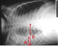 Pleural effusion Chest x-ray of a pleural effu...