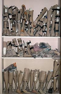 Collection of artificial legs from the OWPC