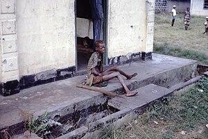 English: Severely malnourished Nigerian refuge...