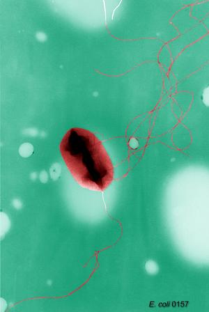 English: Escherichia coli O157:H7, cell with f...