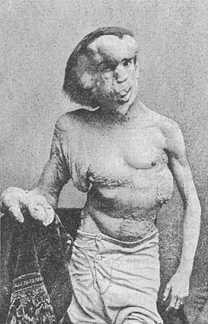 Joseph Merrick (The Elephant Man) photographed...