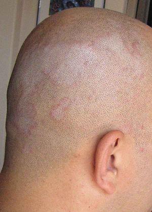 Picture of Seborrhoeic Dermatitis.