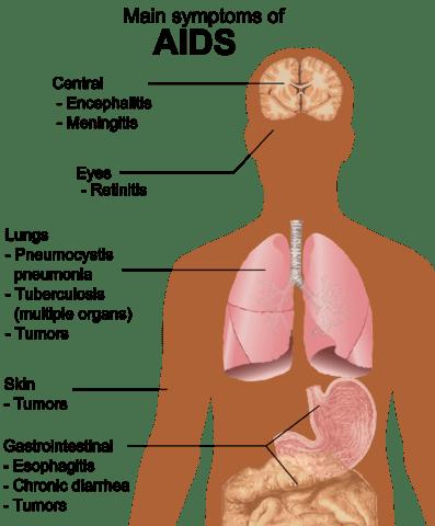 https://i1.wp.com/upload.wikimedia.org/wikipedia/commons/thumb/e/ed/Symptoms_of_AIDS.png/397px-Symptoms_of_AIDS.png