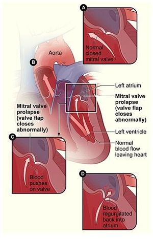 Mitral valve prolapse 2
