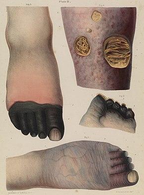Gangrene Wikipedia