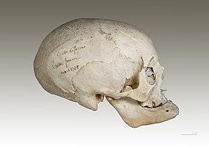 Deutsch: Homo sapiens sapiens - Absichtliche D...