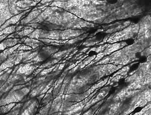 Image of Golgi stained neurons in the dentate ...