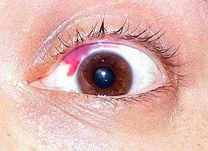 Augen Lasern Forum