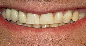 English: Photograph of mild fluorosis. Most no...