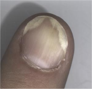 The Black Under Your Toenails & Is This Fungus?   Amoils.com