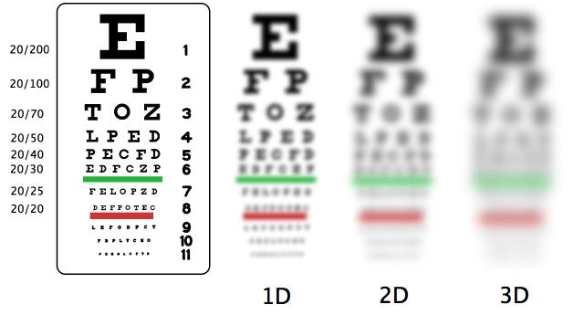 Myopia vision