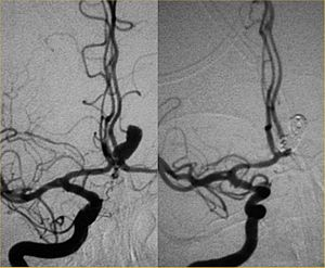 Endovascular repair of cerebral aneurysm.