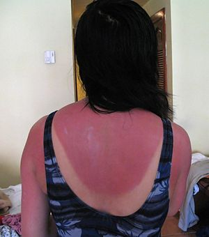 Sunburn, photographed 2 days after a 5-hour su...