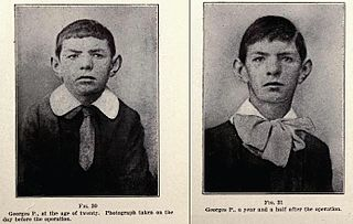 (left) Pre-1920s 20-year old man having his mother's glands grafted onto his own testicles; (right) Same man at age 21.