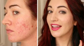 How to cover acne scars without aggravating skin