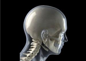 cervical curve, neck pain, shoulder pain