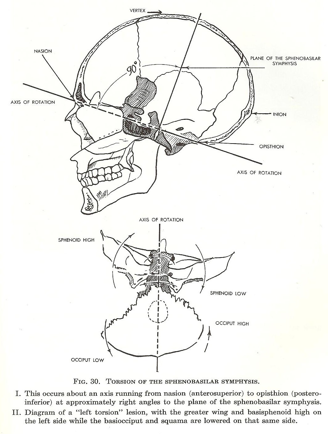 Skull Design And Brainstem Compression