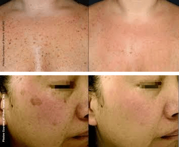 Lentigoes (brown spots) before and after BBL Treatment
