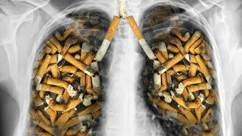 hogyan lehet megtisztítani a tüdőt a dohányzó népi gyógymódoktól)
