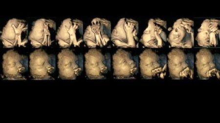 The study looked at fetuses for both smoking and non-smoking women. The fetuses, whose mother's smoked, tended to touch their face more often as they developed. (Dr Nadja Reissland, Durham University)