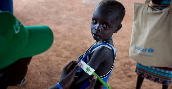 In this photo taken on Oct. 20, 2016, a boy has his arm measured to see if he is suffering from malnutrition during a nutritional assessment at an emergency medical facility supported by UNICEF in Kuach, on the road to Leer, in South Sudan. (Kate Holt / UNICEF)